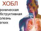 Акция Департамента здравоохранения города Москвы,приуроченная к Всемирному Дню борьбыс хронической обструктивной болезнью легких (ХОБЛ)